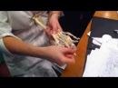 Анатомия костей верхней конечности