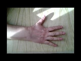 ЛФК( лечебно-физкультурный комплекс) (часть 1) после перелома руки, лучезапястно