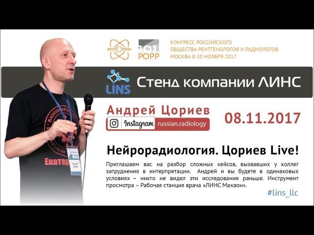 Андрей Цориев. Нейрорадиология: Цориев Live!