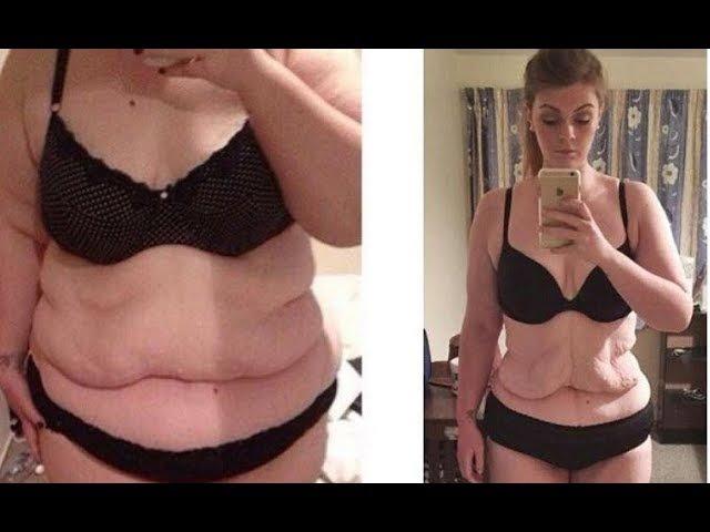 Как вернуть грудь после похудения