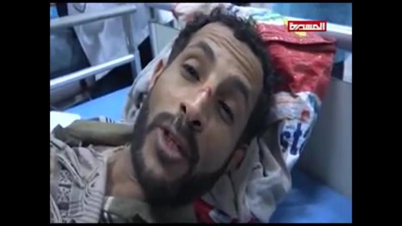 هكذا كانت جريمة العدوان بحق أسرى المنافقين في سجن الشرطة العسكرية بصنعاء