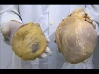 сердце алкоголика - кардиохирург Лео Бакерия