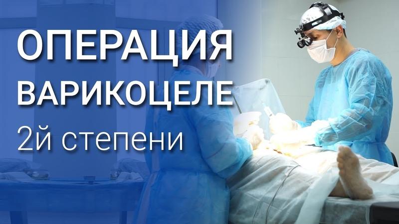 Операция Мармара при варикоцеле 2 степени
