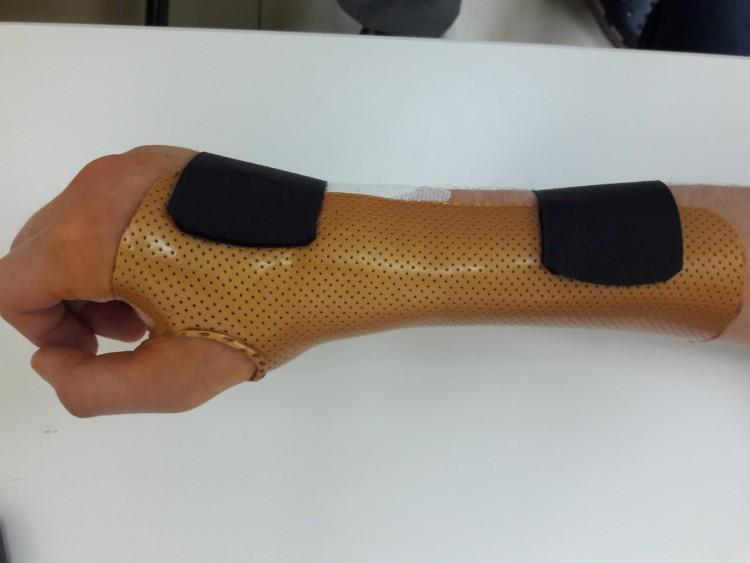 Реабилитация после перелома лучевой кости в типичном месте. Современные подходы в лечении, профилактике и реабилитации, изображение №3