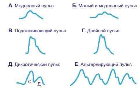 Все что нужно знать о пульсе, изображение №1